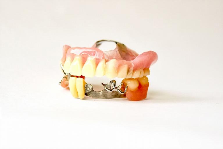 どうして金属歯科が多いのか