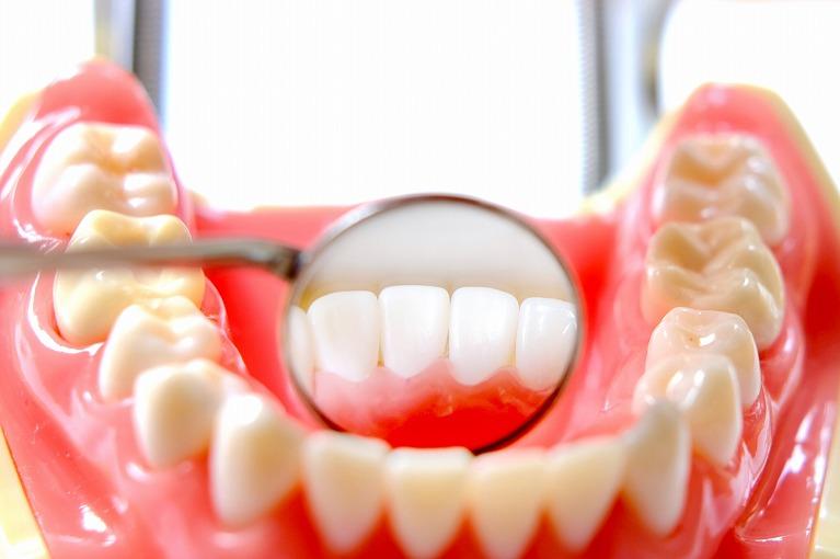 2次むし歯などの早期発見がしにくい